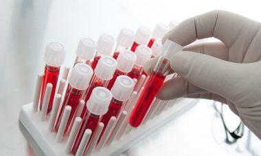 Пробирка с кровью для анализа